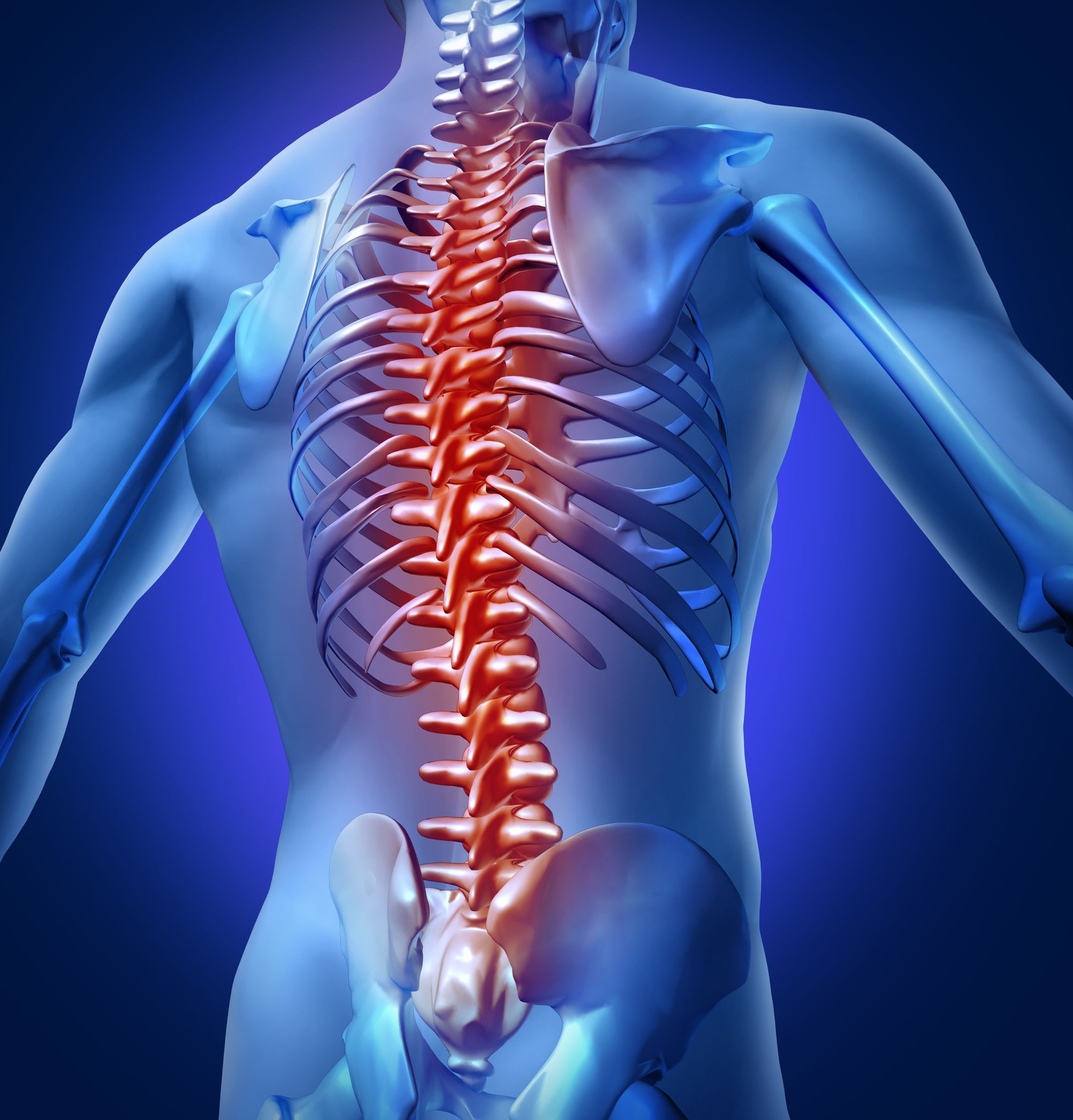 12353993 - human backache and back pain with an upper torso body skeleton showing the spine and vertebral column in red highlight as a medical health care concept for spinal surgery and therapy.